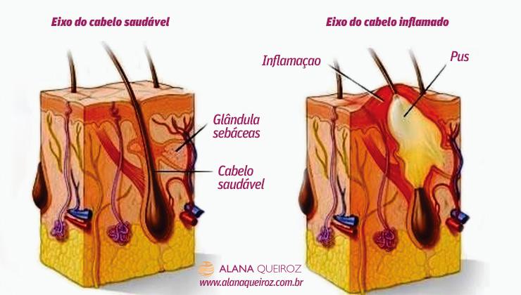 dra-alana-queiroz-foliculite